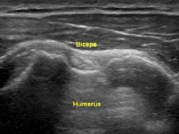 Biceps&shysenan