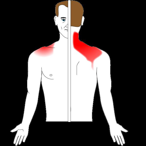 b4a76244aa1 Ont i axeln, sjukdomar och behandlingar • Södermalms ortopedi