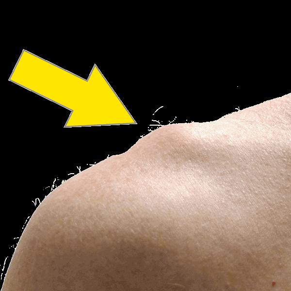 0dfd14ca6fa Artros i akromioklavikularleden • Södermalms ortopedi