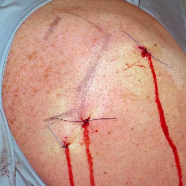 södermalms ortopedi